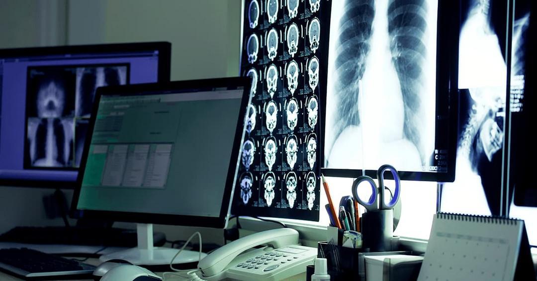 Telerradiologia: dúvidas comuns sobre essa nova ferramenta da Telemedicina