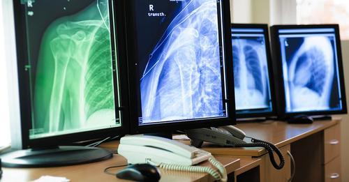 Telemedicina e Radiologia: um casamento de longa data